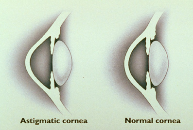 LASIK: The astigmatic eye.