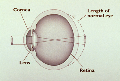 LASIK: The hyperopic eye.