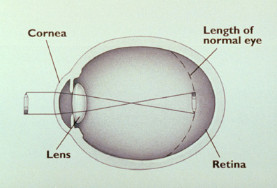 LASIK: The myopic eye.