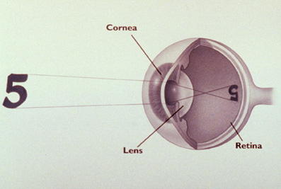 LASIK: The normal, emmetropic, eye.